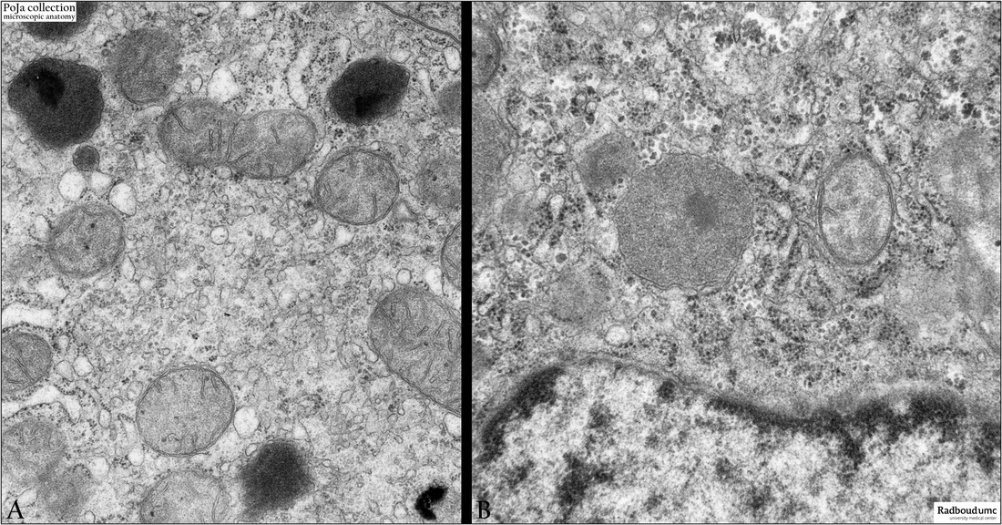 Electron Micrographs Of Organelles In The Liver Cell Rat Poja