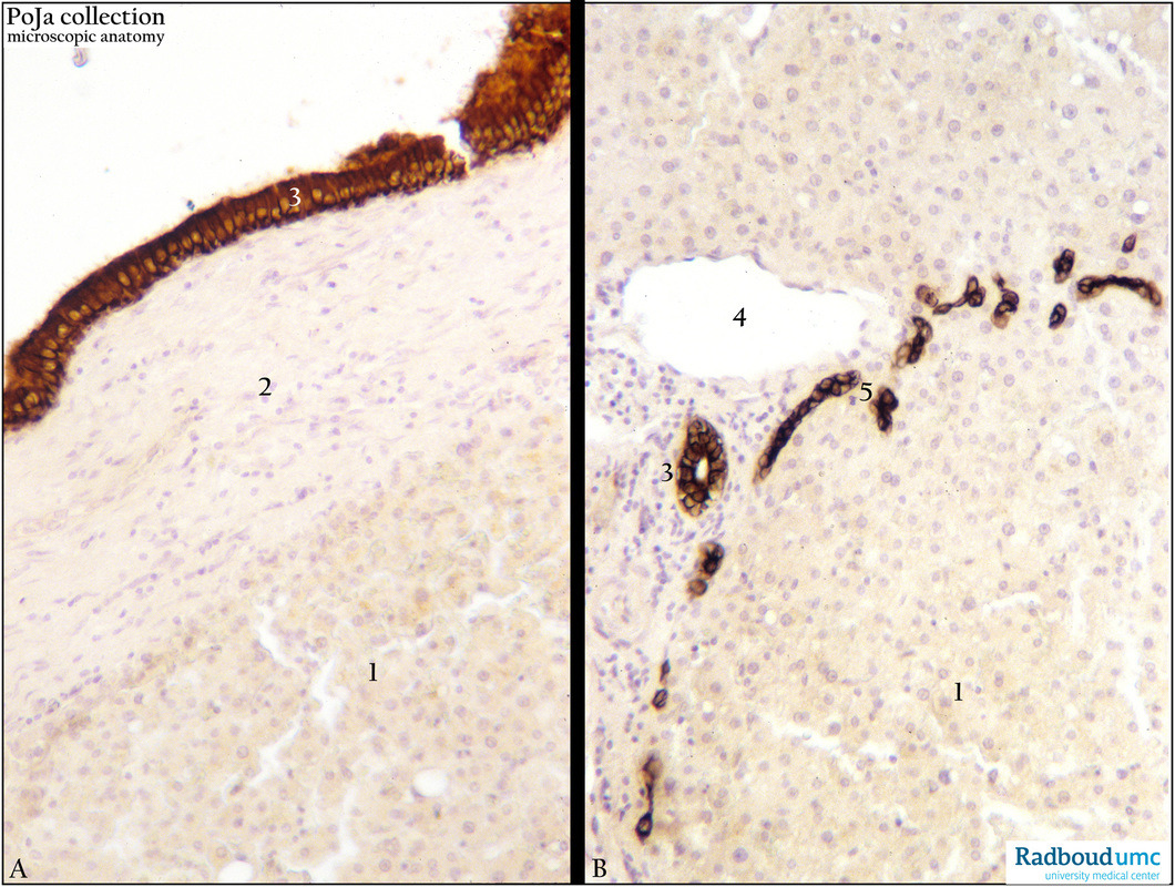 Keratin 7 Staining Of Intrahepatic Bile Duct And Terminal Bile