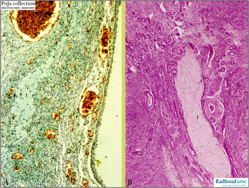 Corpus albicans and corpus fibrosum of the ovary